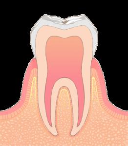 宮下歯科室 虫歯C0