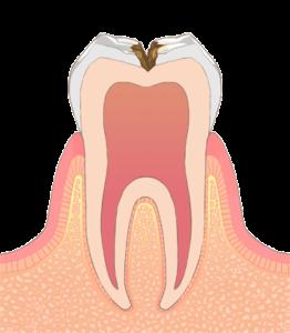 宮下歯科室 虫歯C2