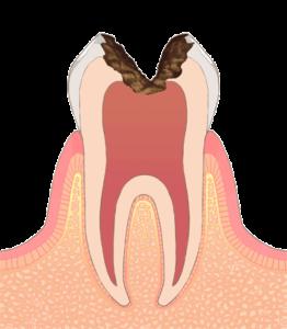 宮下歯科室 虫歯C3