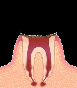 宮下歯科室 虫歯C4