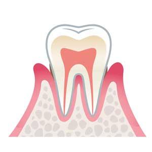 宮下歯科室 軽度歯周病