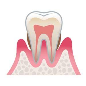 宮下歯科室 中度歯周病