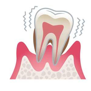 宮下歯科室 重度歯周病