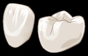 宮下歯科室 オールジルコニア