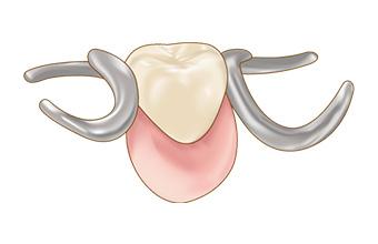 宮下歯科室 部分入れ歯