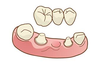 宮下歯科室 ブリッジ治療