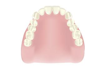 宮下歯科室 レジン床義歯