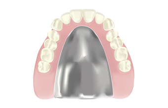 宮下歯科室 金属床義歯