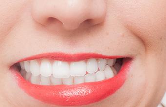 宮下歯科室 歯ぎしりの多い方