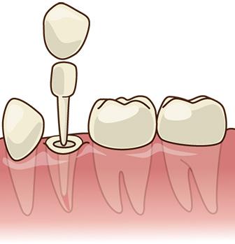 宮下歯科室 グラスファイバーコア