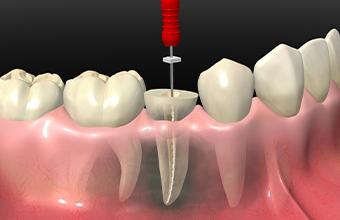 宮下歯科室 根管治療