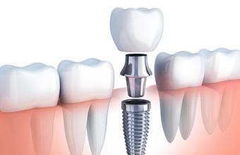 宮下歯科室 インプラント治療