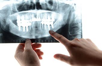 宮下歯科室 インプラントの寿命