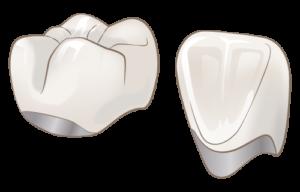 宮下歯科室 メタルボンドセーレン