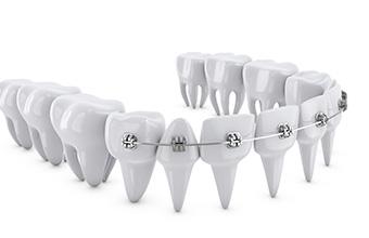 宮下歯科室 矯正治療