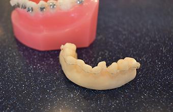 宮下歯科室 ブラケットフリー